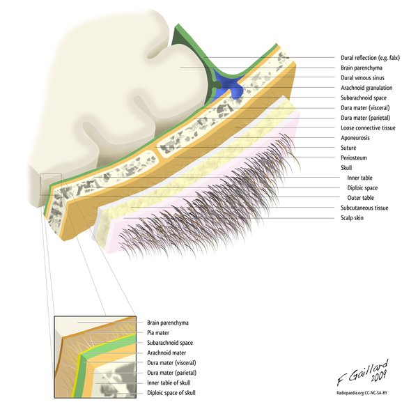 Layers_of_the_scalp_and_meninges